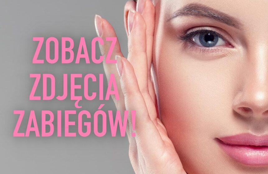 Niesamowity efekt makijażu permanentnego – ZOBACZ ZDJĘCIA!